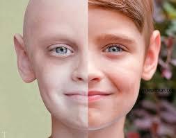 33 دانستنیهای خواندنی در مورد مبتلا شدن به سرطان