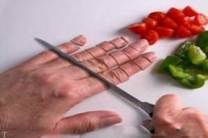 اقدامات مهم به هنگام قطع شدن انگشت دست