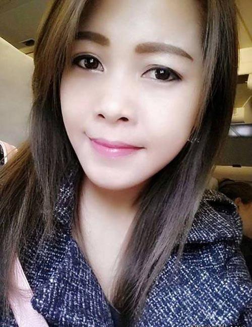 آبسه دندان منجر به از دست رفتن زیبایی این دختر شد