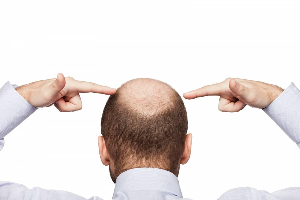 درمان ریزش مو با آمینکسیل