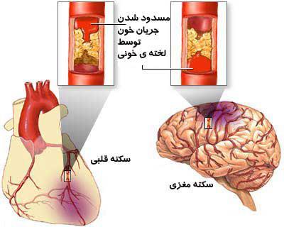 آشنایی و درک علائم ونشانههای سکته قلبی