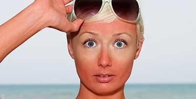 7 راهکار برای کاهش عوارض آفتاب سوختگی