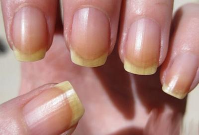 بیماری تغییر رنگ ناخن به زرد