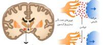 روش هایی برای متوجه شدن مبتلا به بیماری پارکینسون