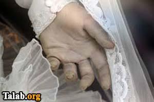 همخوابی مرد با جسد همسرش در کرج (عکس)