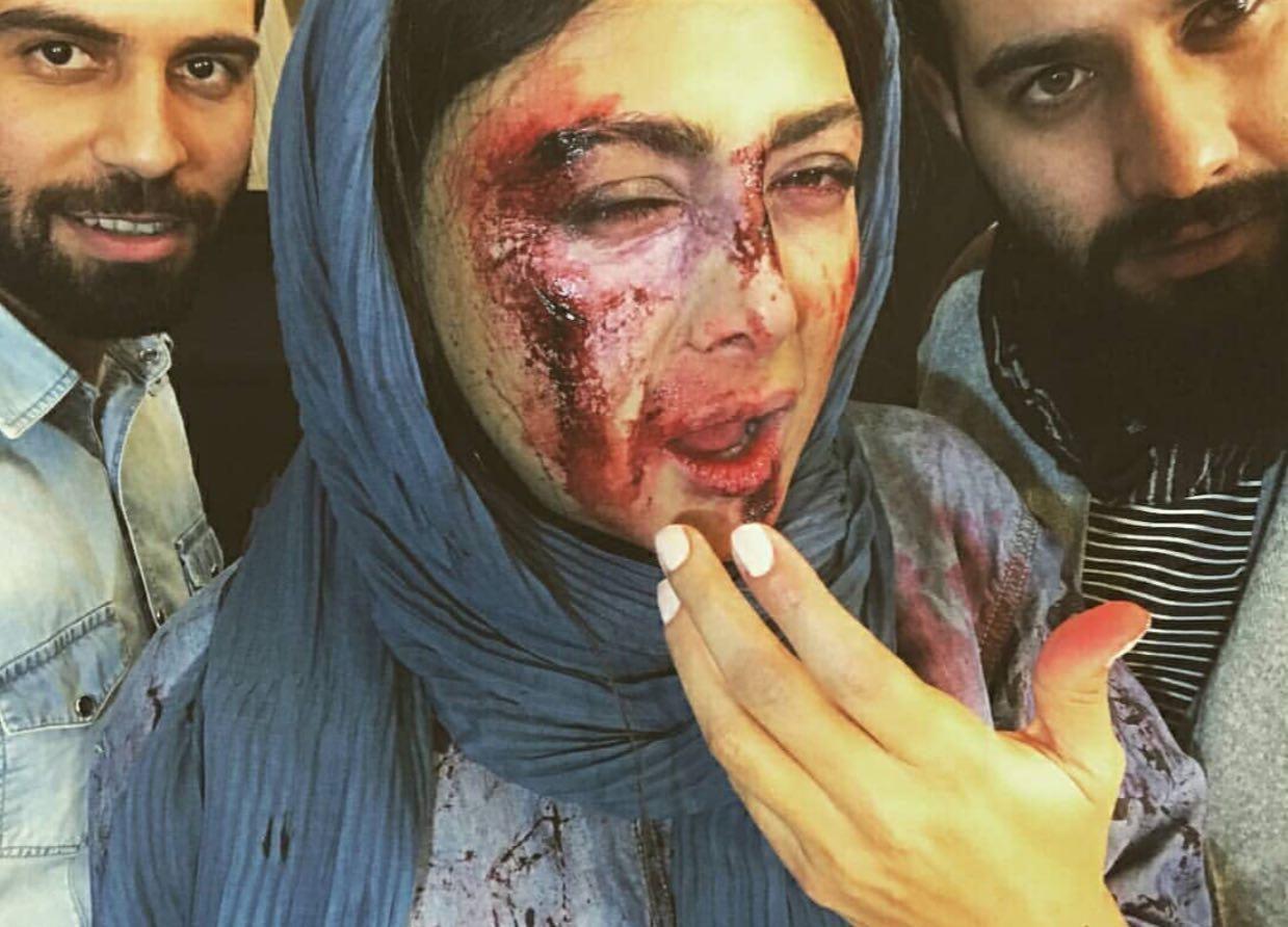 آزاده صمدی با چهره دلخراش و کتک خورده (+عکس)