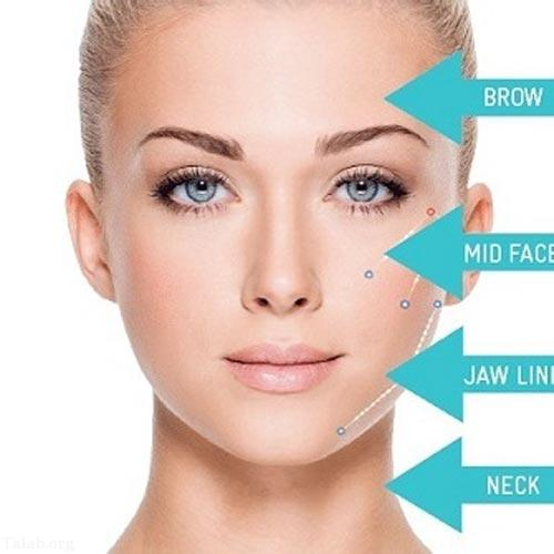 جدیدترین روش لیفتینگ پوست صورت با نخ سیلوئت (عکس)