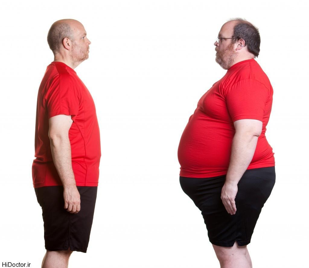 تفاوت های اصلی اضافه وزن با چاقی + فیلم