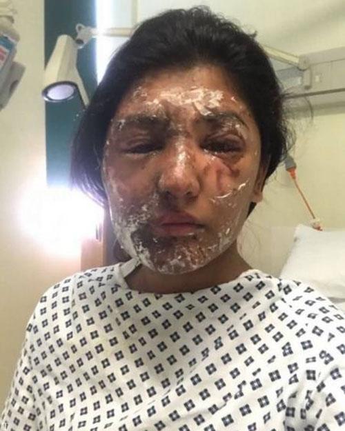 بازسازی خلاقانه چهره ی دختر مدلینگ پس از اسید پاشی (عکس)