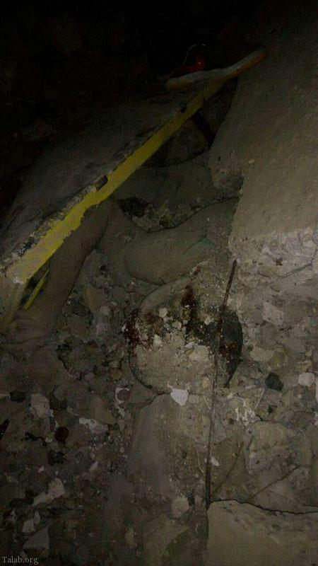 تصویر دردناک از زمین لرزه در کرمانشاه (+18)