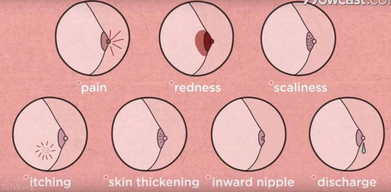 علت های بوجود آمدن سرطان سینه در زنان