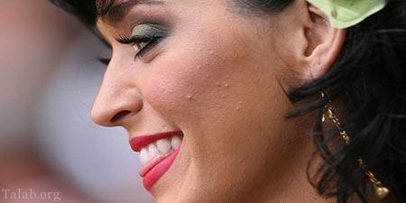 ترفند هایی برای درمان جوش بعد از اپیلاسیون صورت