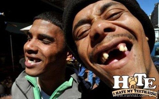 مد عجیب نداشتن دندان در آفریقا (+تصاویر)