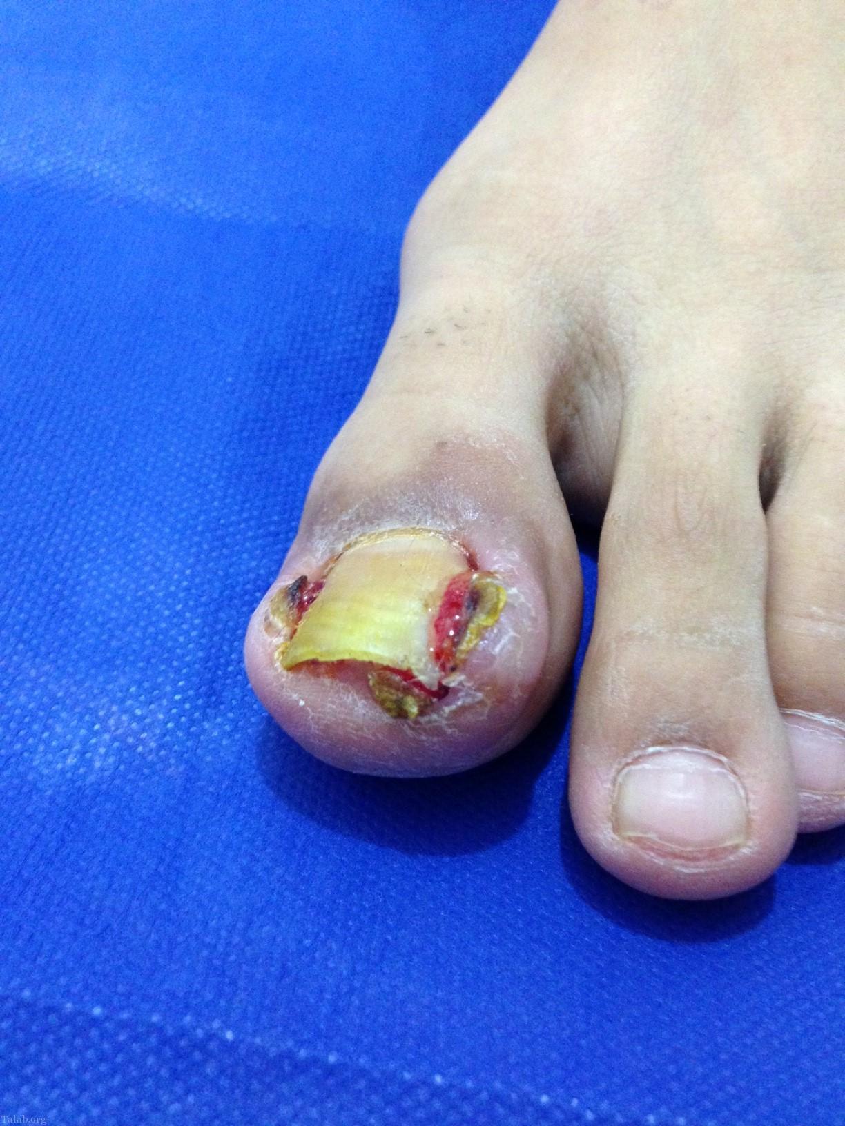 علایم و درمان فرورفتن ناخن در گوشت پا