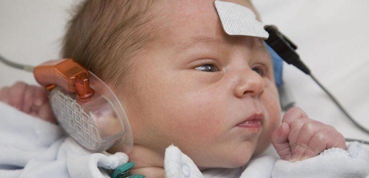 هیدروپس گوش چیست و چه علائمی دارد ؟