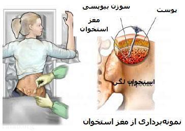 بیماری و درمان سرطان بدخیم استخوان