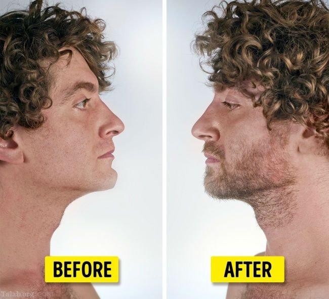 جراحی های زیبایی عجیب مد سال 2018