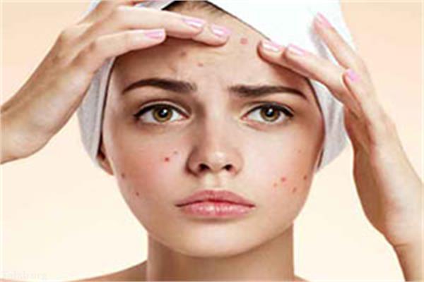 آیا صابون های اسیدی آکنه صورت را برطرف میکند ؟