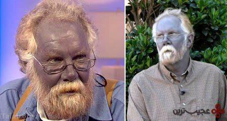 پوست آبی این مرد واقعا حیرت انگیز است ! (+عکس)