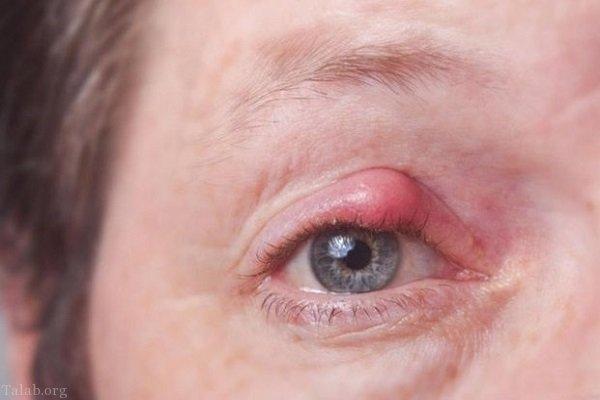علایم و درمان گل مژه