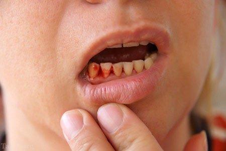 علت خونریزی در لثه دندان