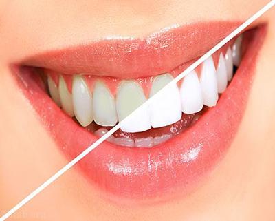 رابطه ی سلامتی دندان و قندهای مخرب
