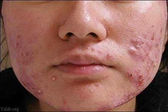درمان جوش صورت با طب سوزنی + 40 روش درمان جوش صورت