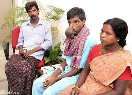 بینی عجیب و بزرگ این پسر هندی به شکل بیضه جراحی شد !
