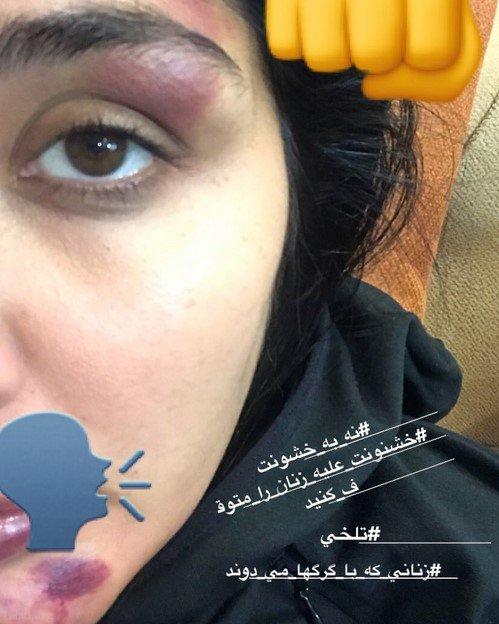 آزار و اذیت بازیگر مشهور مریم معصومی توسط مرد ناشناس (عکس)