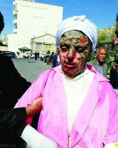 ماجرای وحشتناک اسیدپاشی به زن جوان و زیبای تبریزی + فیلم و عکس