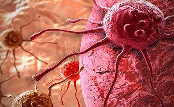 چگونه می توان سرطان را زود تشخیص داد ؟