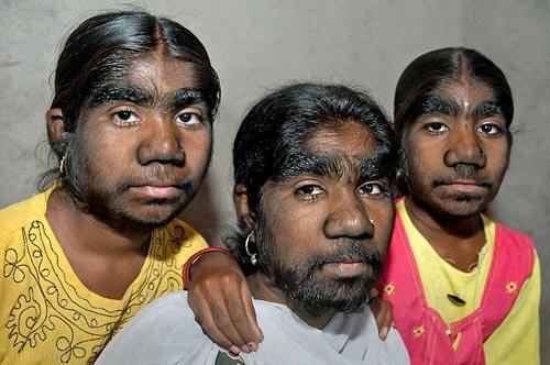 تصاویر ترسناک از انسان های ناقص الخلقه و بیماری های عجیب