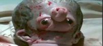 بدنیا آمدن نوزاد ناقص الخلقه عجیب (کلیپ)