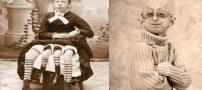 تصاویر انسان های ناقص الخلقه و عجیب جهان + نوزاد ناقص الخلقه