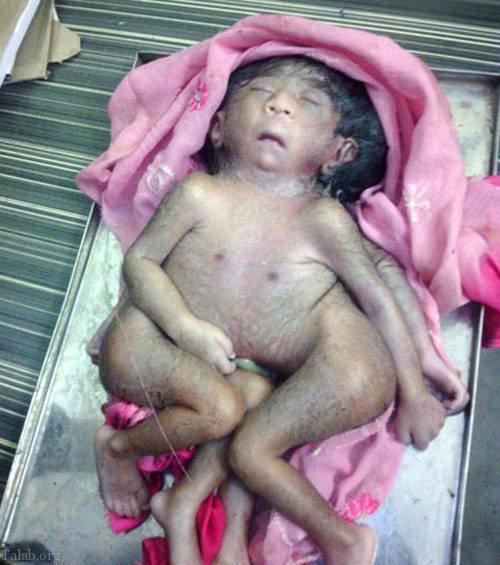 دلیل تولد نوزاد ناقص الخلقه چیست ؟ (فیلم)