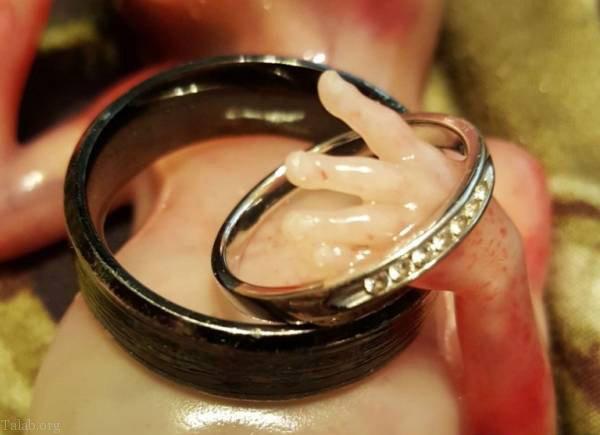 ماجرای دلخراش سقط جنین مادری در 15 هفتگی بارداری (عکس)