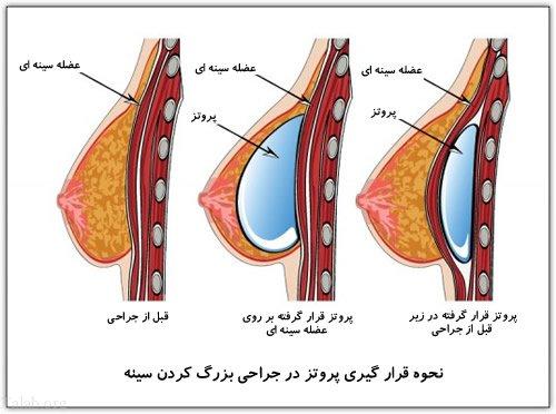 انواع روش های پروتز سینه و بزرگ کردن سینه + نکات مهم در مورد پروتز سینه