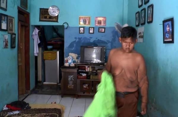 کاهش وزن سریع چاق ترین پسر بچه جهان (عکس)