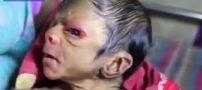 تولد یک نوزاد عجیب الخلقه دیگر در هندوستان (فیلم)