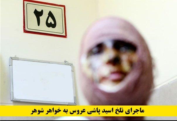 ماجرای تلخ اسید پاشی عروس به خواهر شوهر | سوزاندن عروس 16 ساله