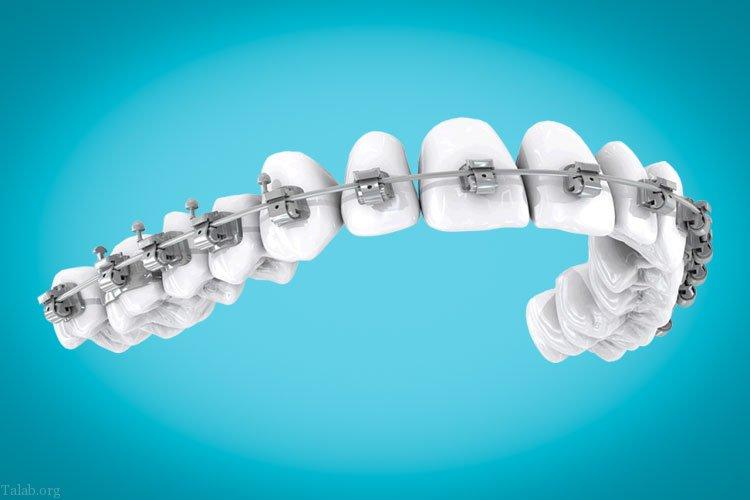 مشکلات رایج دهان و دندان