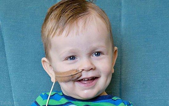 4 سال تحمل بیماری عجیب بخاطر خوردن یک خلال دندان (عکس)