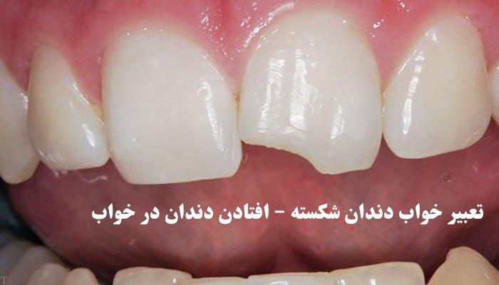 تعبیر خواب دندان شکسته – افتادن دندان در خواب