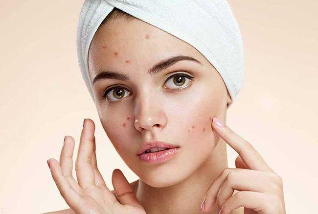 جلوگیری و درمان جوش صورت با روش طبیعی و سریع