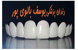 سفید کردن دندان و روش های آن