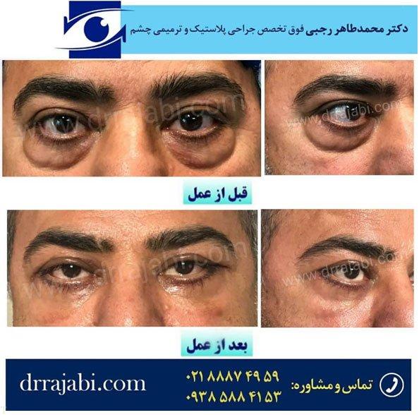 جراحی بلفاروپلاستی و افتادگی پلک توسط بهترین جراح پلک