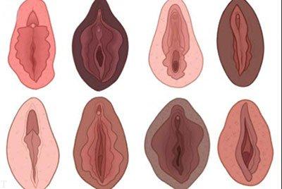 انواع مختلف واژن + ساختار درون واژن