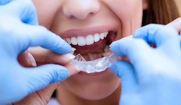 دکتر سعید قریشی، متخصص ارتودنسی نامرئی و دندانپزشکی اطفال