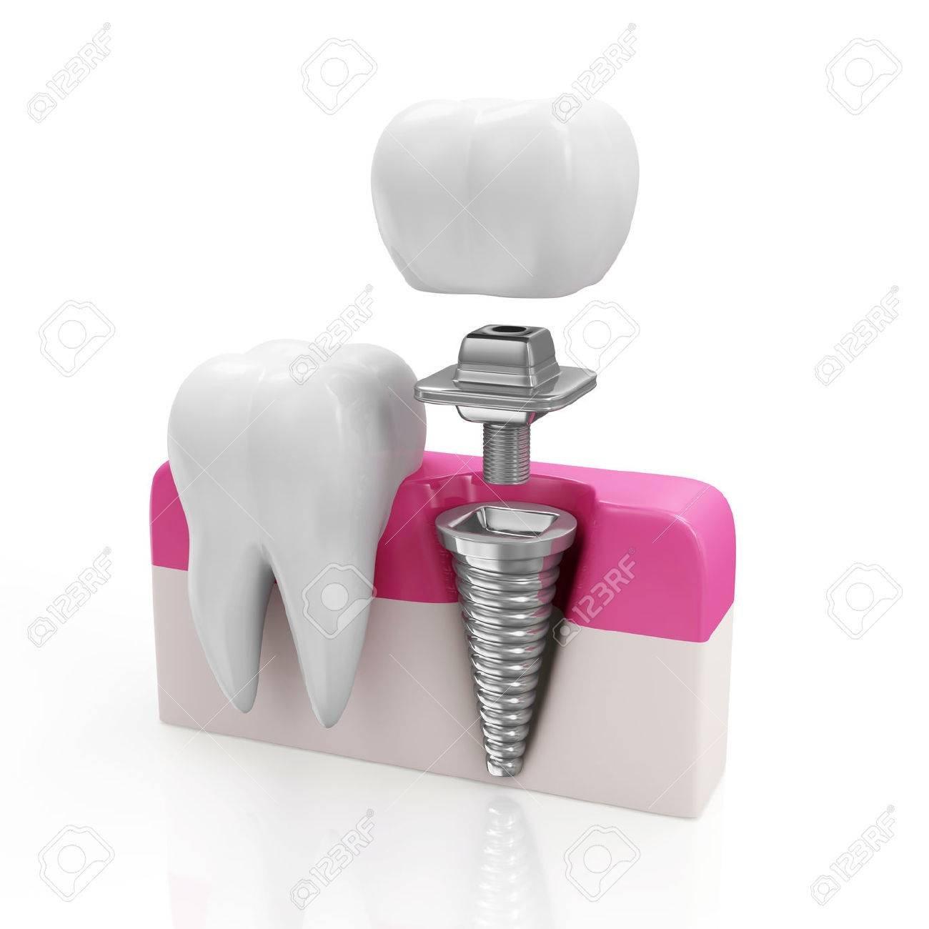 ایمپلنت دندان | مزایای ایمپلنت دندان