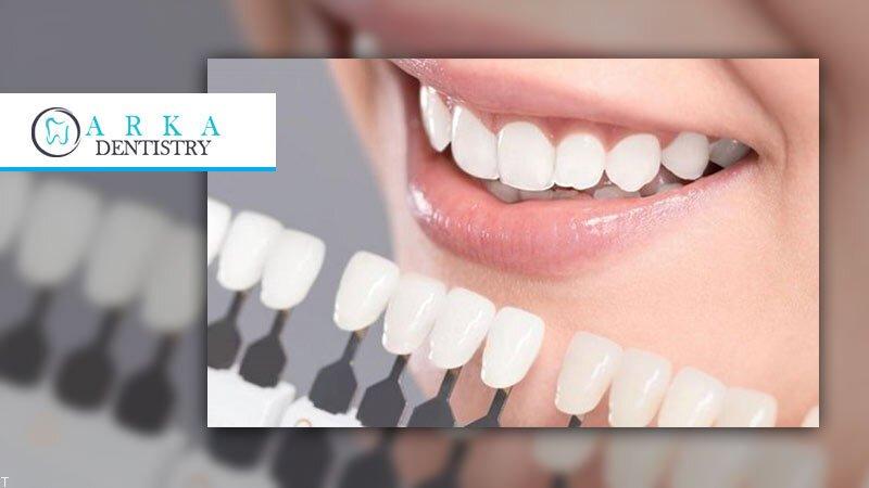 هر آنچه در مورد ونیر کامپوزیت و لمینت دندان باید بدانید